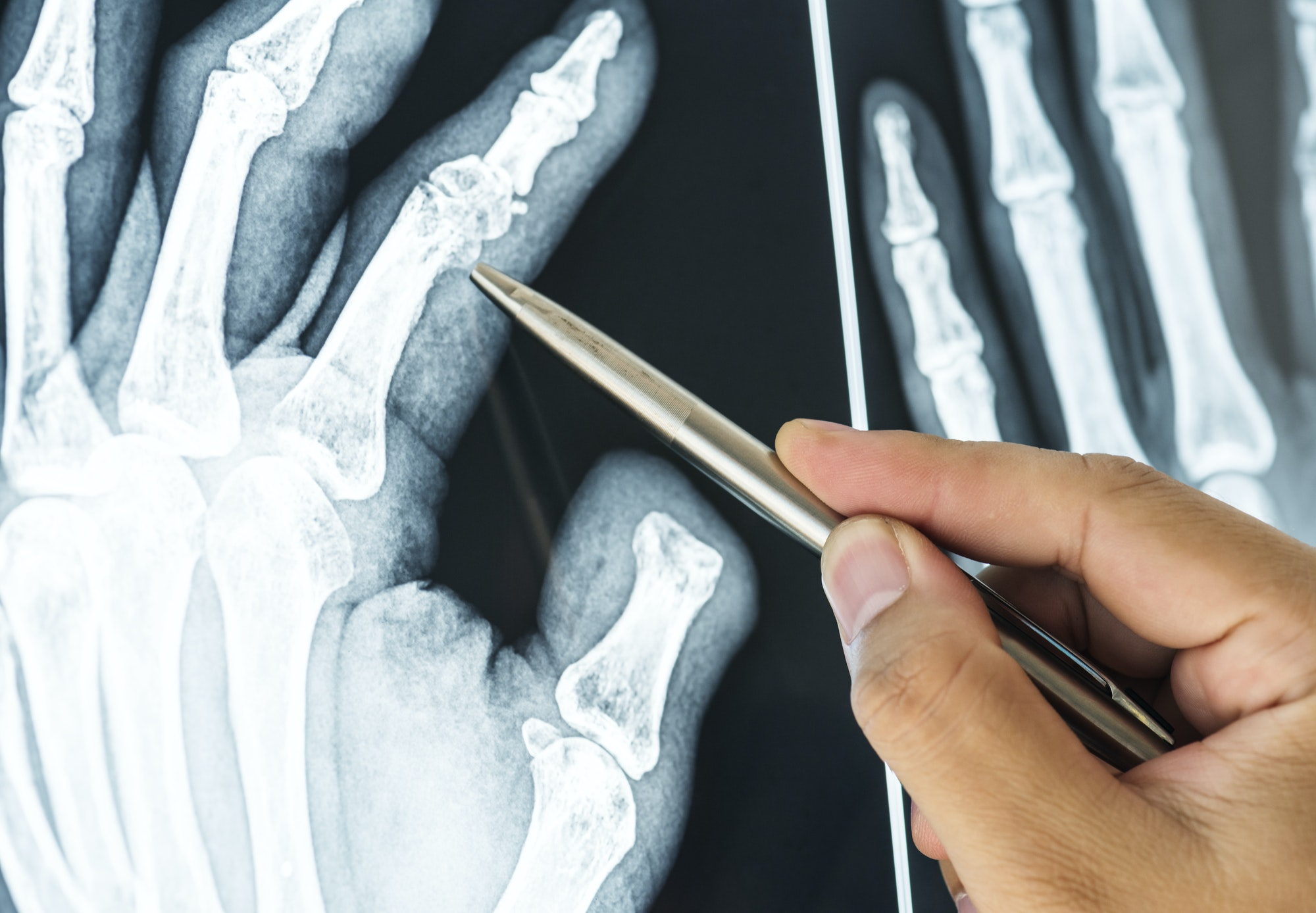 Closeup of x-ray filmof a fractured finger